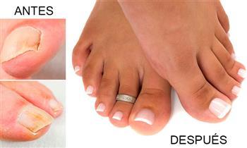 Surco: Uñas acrílicas antimicóticas para pies (Hongos) y más